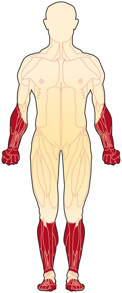 بیماری عضلانی