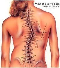 درمان بیماری اسکولیوز