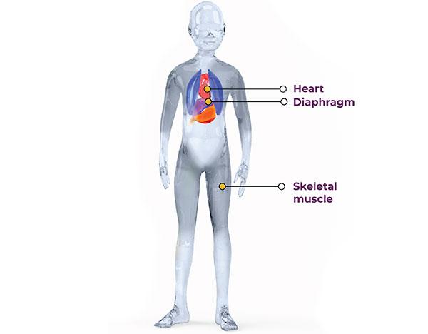 تاثیر دیستروفی عضلانی دوشن